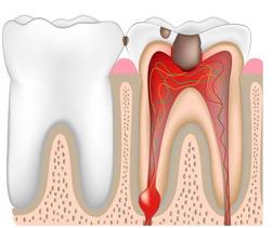 periodontit