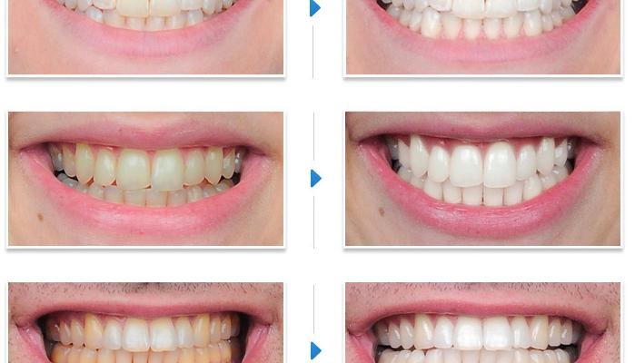 За и против професионалното избелване на зъбите?
