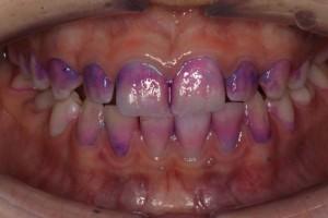 Teddy-Duffys-teeth