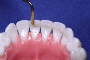 parodontoza vasident