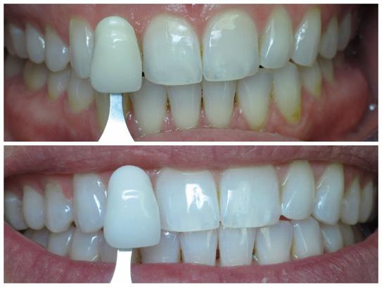Професионално избелване на зъби с Futura 2400