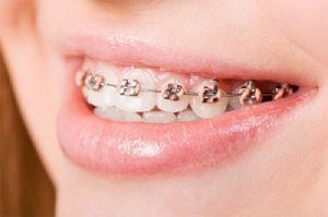 Metal-Braces-Image-4