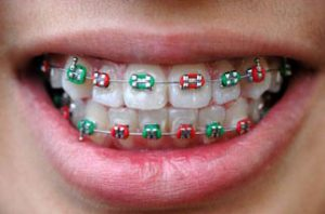 colored-metal-braces-in-Dubai